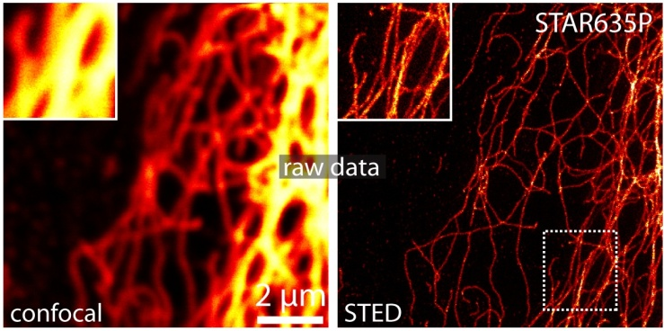 STED_microscopy_image_of_Vimentin_with_25nm_resolution